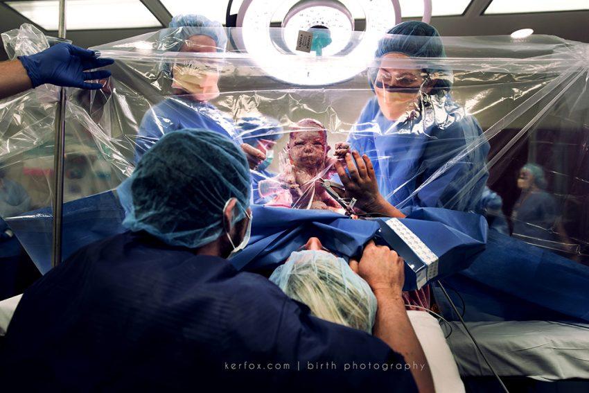 Zdjęcia z porodu – prace konkursowe